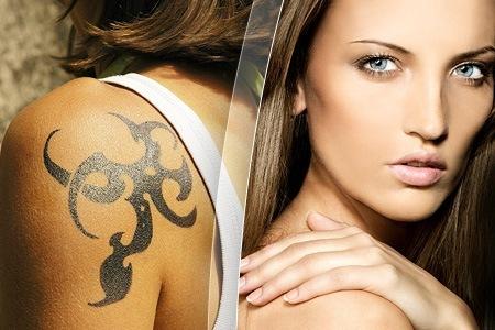Jede tattoo entfernung birgt ein risiko